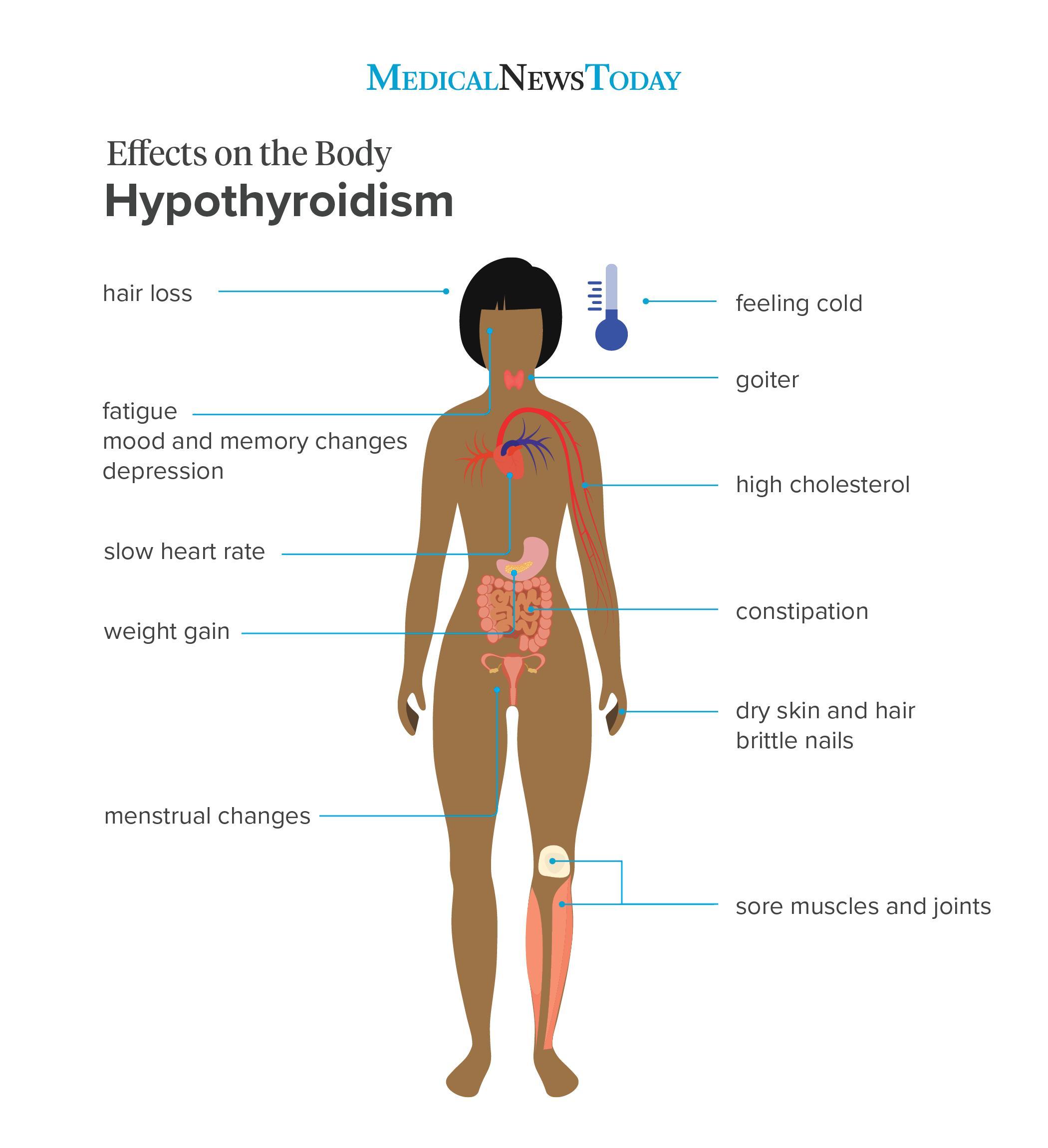 hypothyroidism symptoms 12 signs