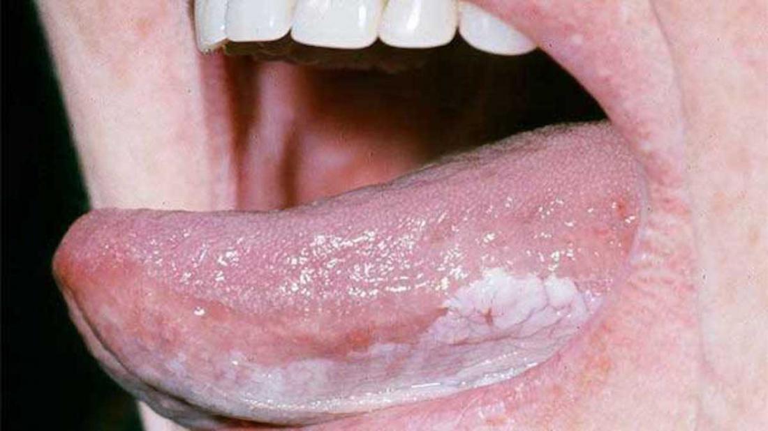 oral leukoplakia br image credit dermnet new zealand br
