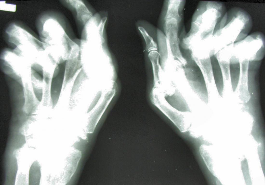 xray of hands with rheumatoid arthritis Image credit: Jojo, 2005