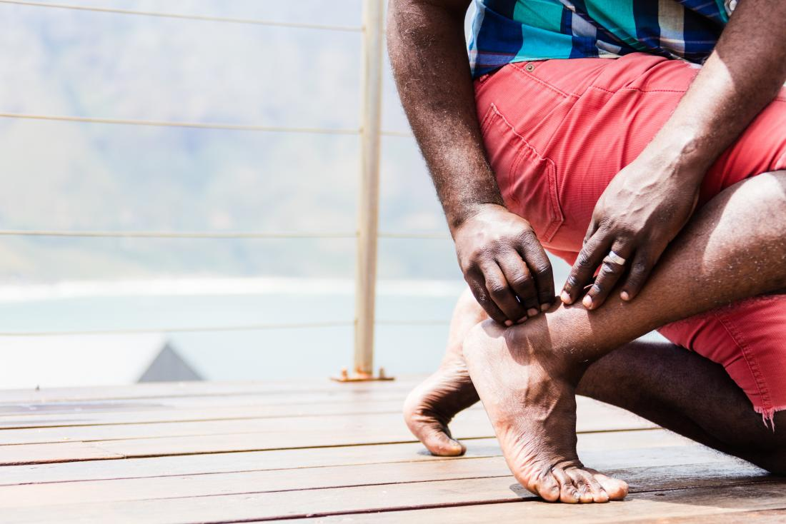 man with achilles tendon pain