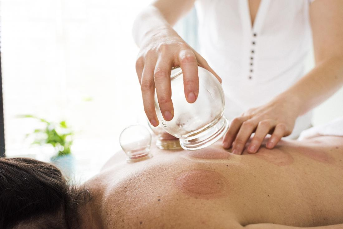 Person having cupping therapy applied to back.