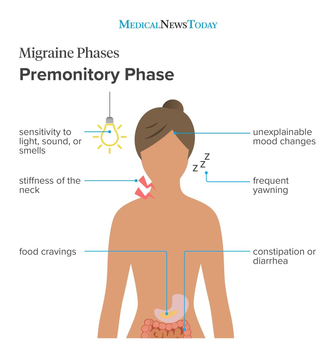 can you have migraine without the headache