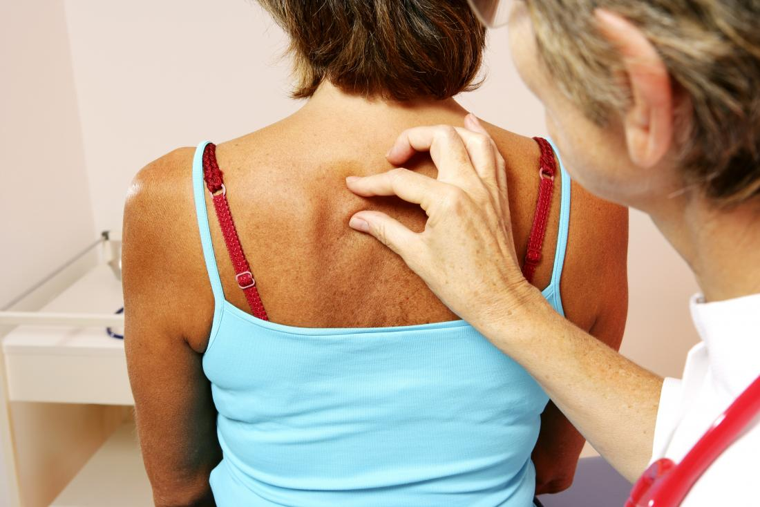 Dermatologist inspecting hard lump under persons skin on back