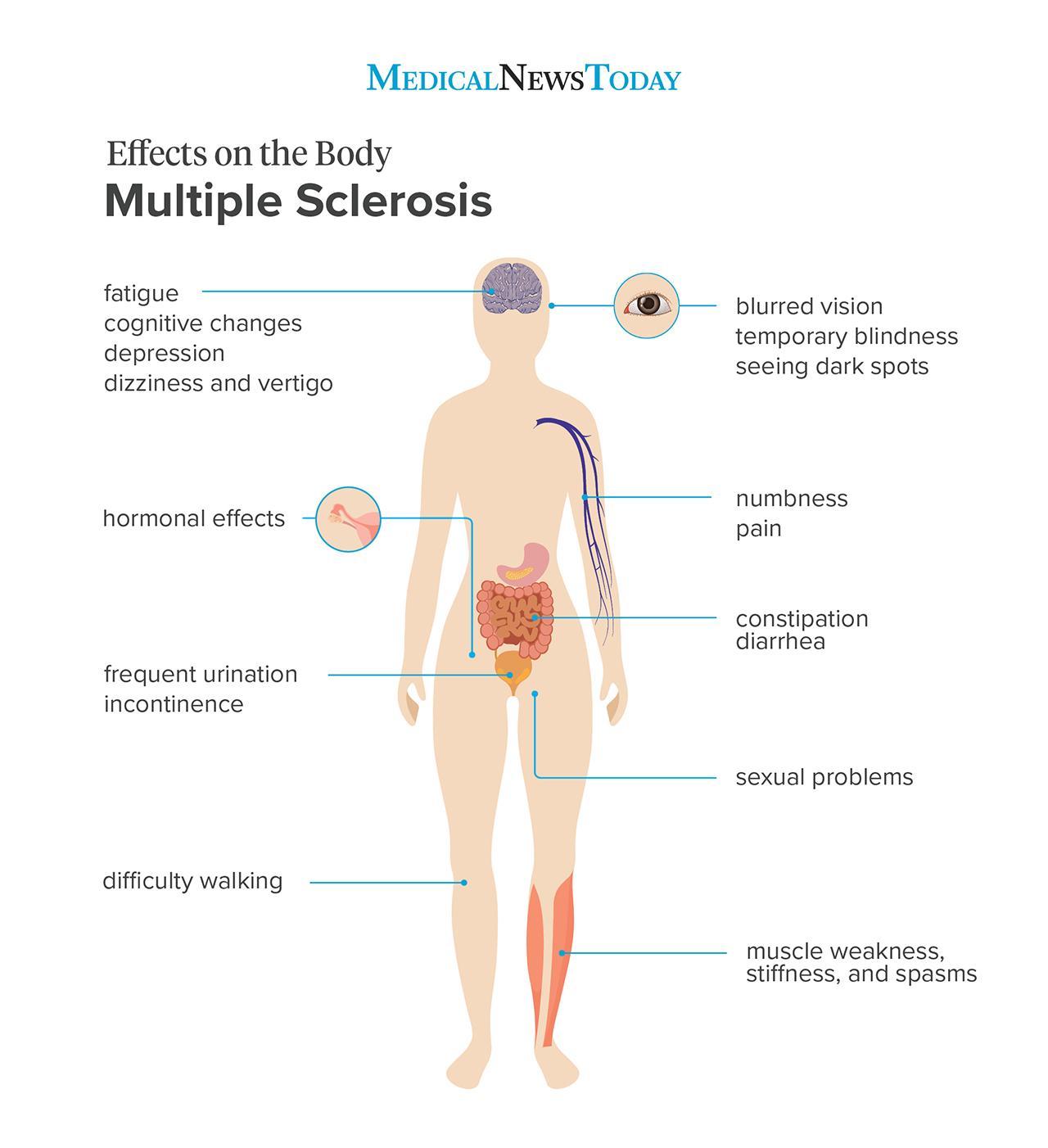 15 symptoms of ms