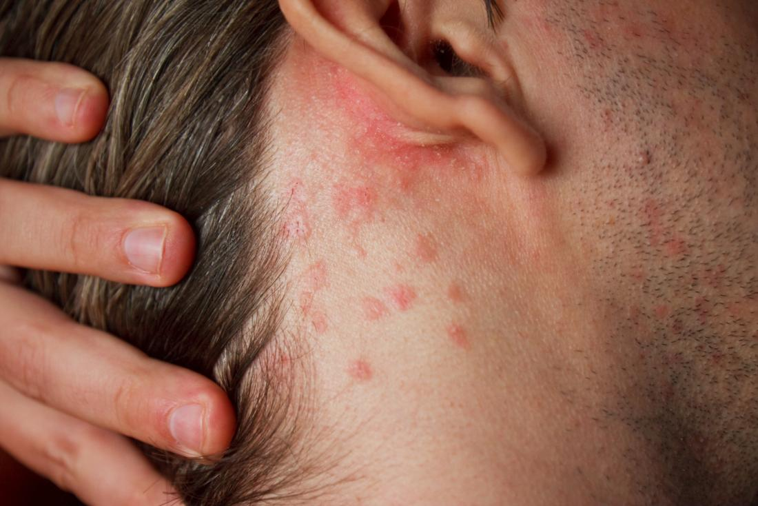 Eczema or dermatitis or rash behind the ears and neck