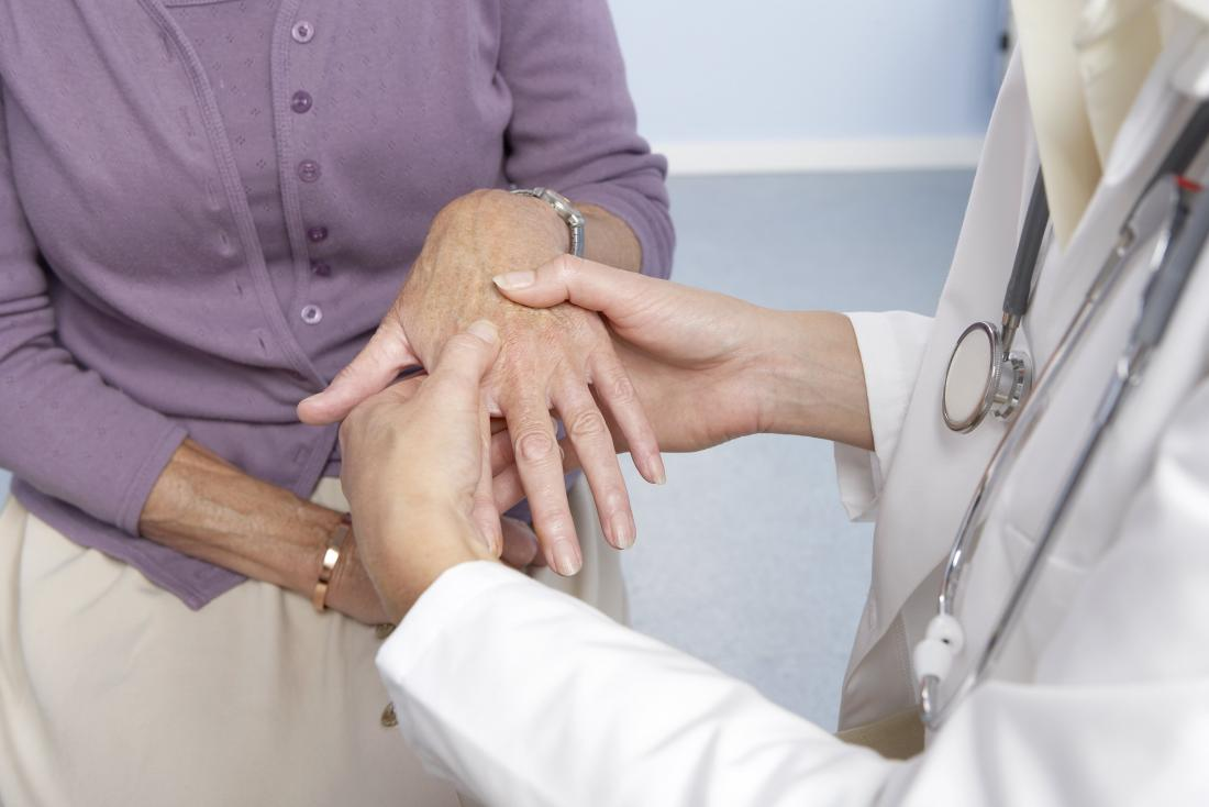 doctor checking for signs of rheumatoid arthritis