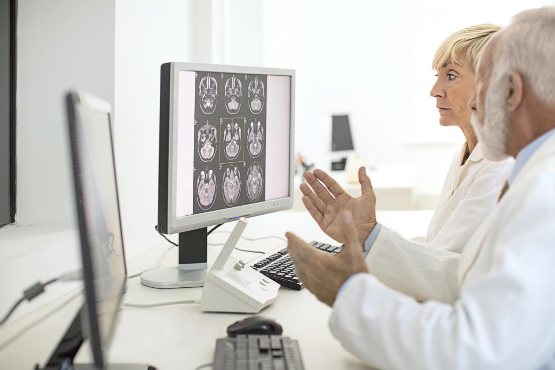 doctors looking at brain scans