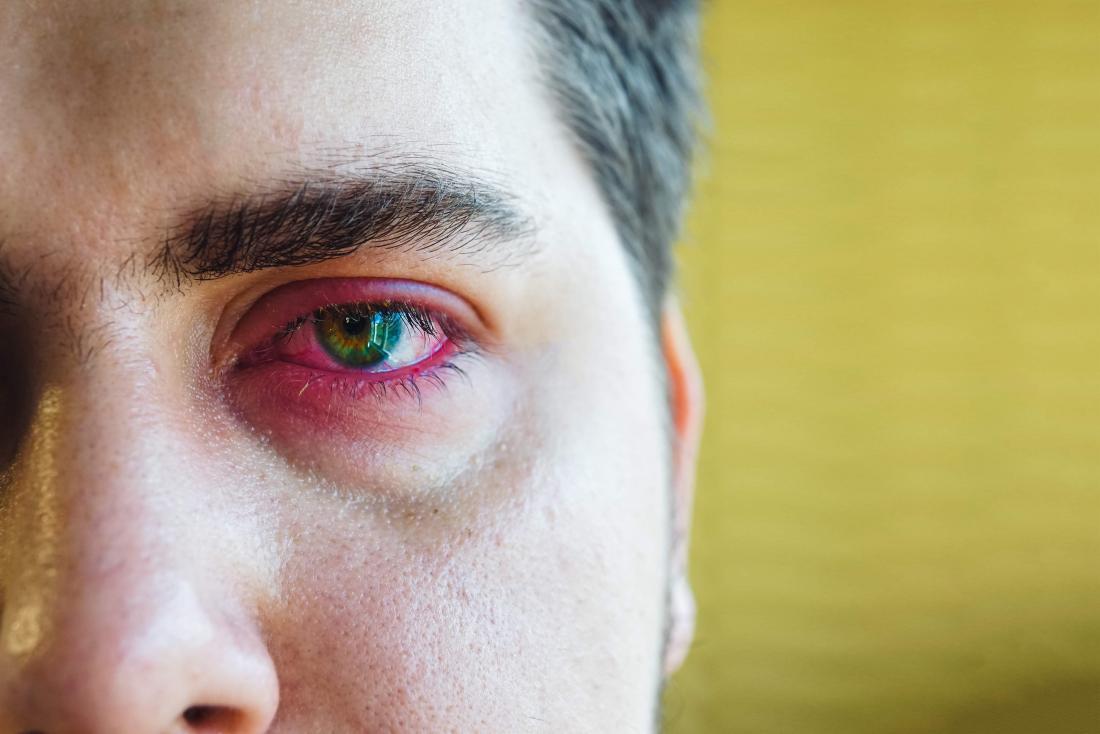 sore eyelid