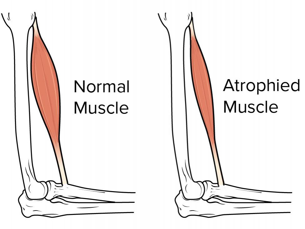 Illustration of muscle atrophy. Image credit: OpenStax, 2016.