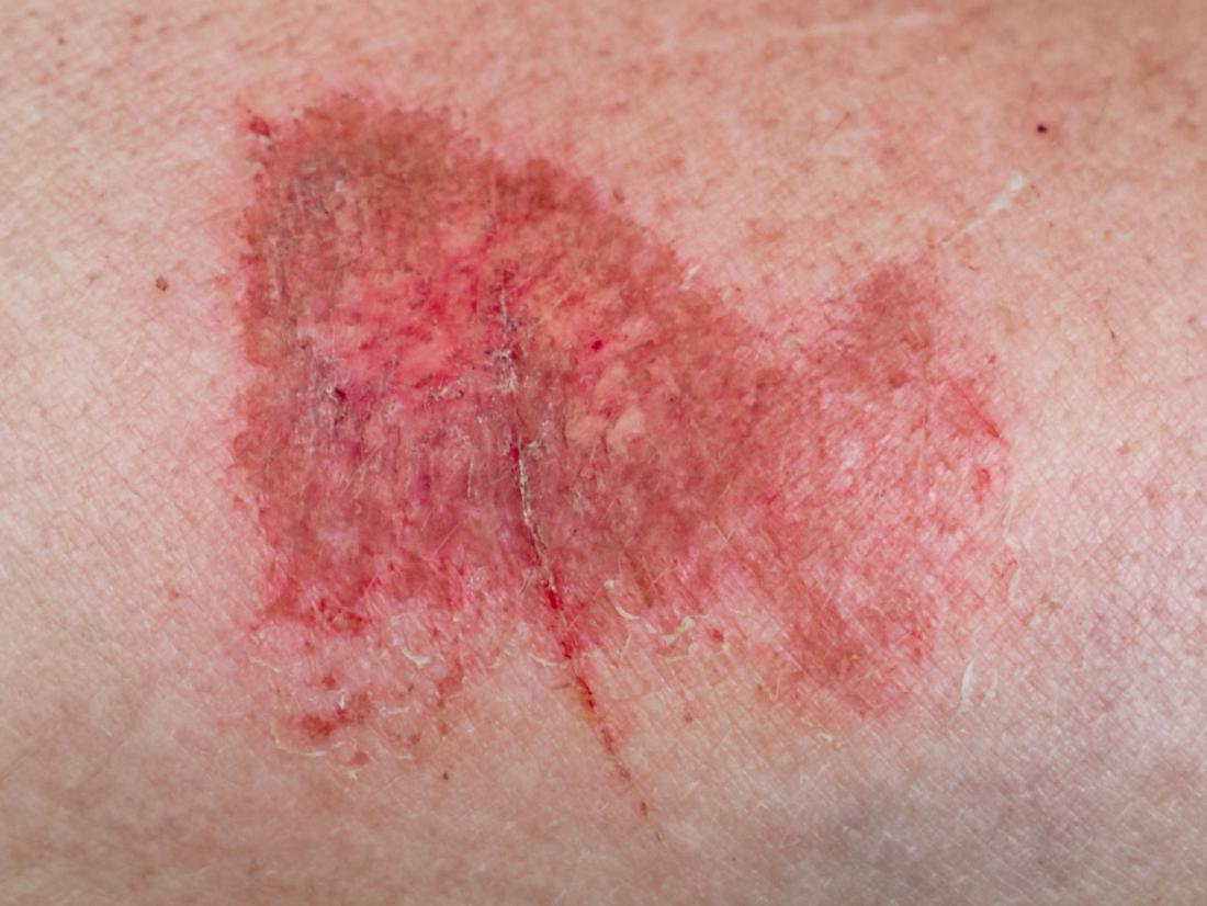 How To Cure Friction Burn