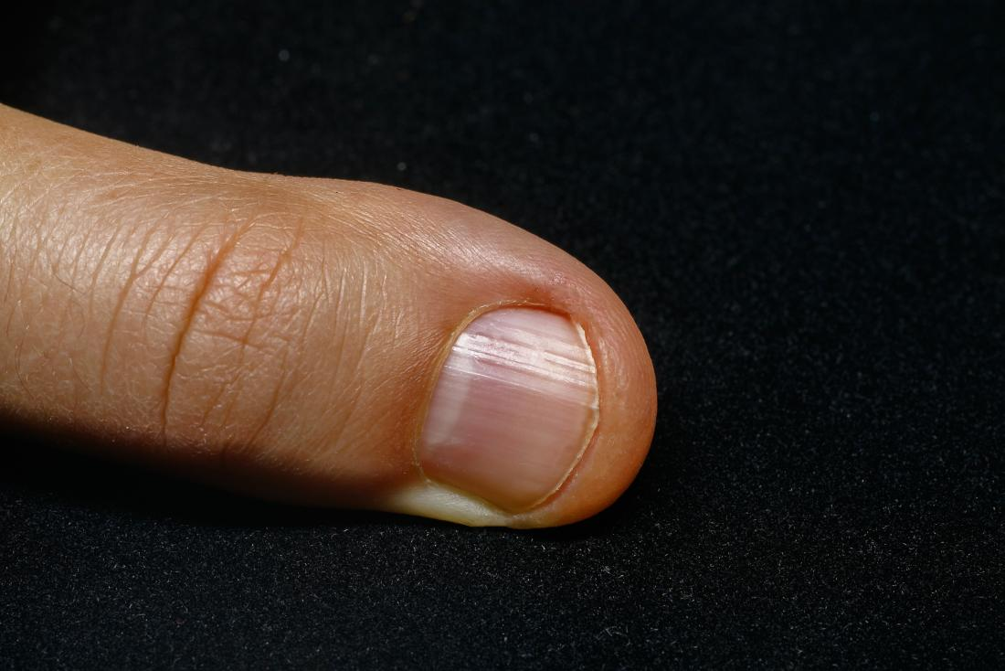 People with no half moon on their nails could be suffering from malnourishment, or vitiligo.
