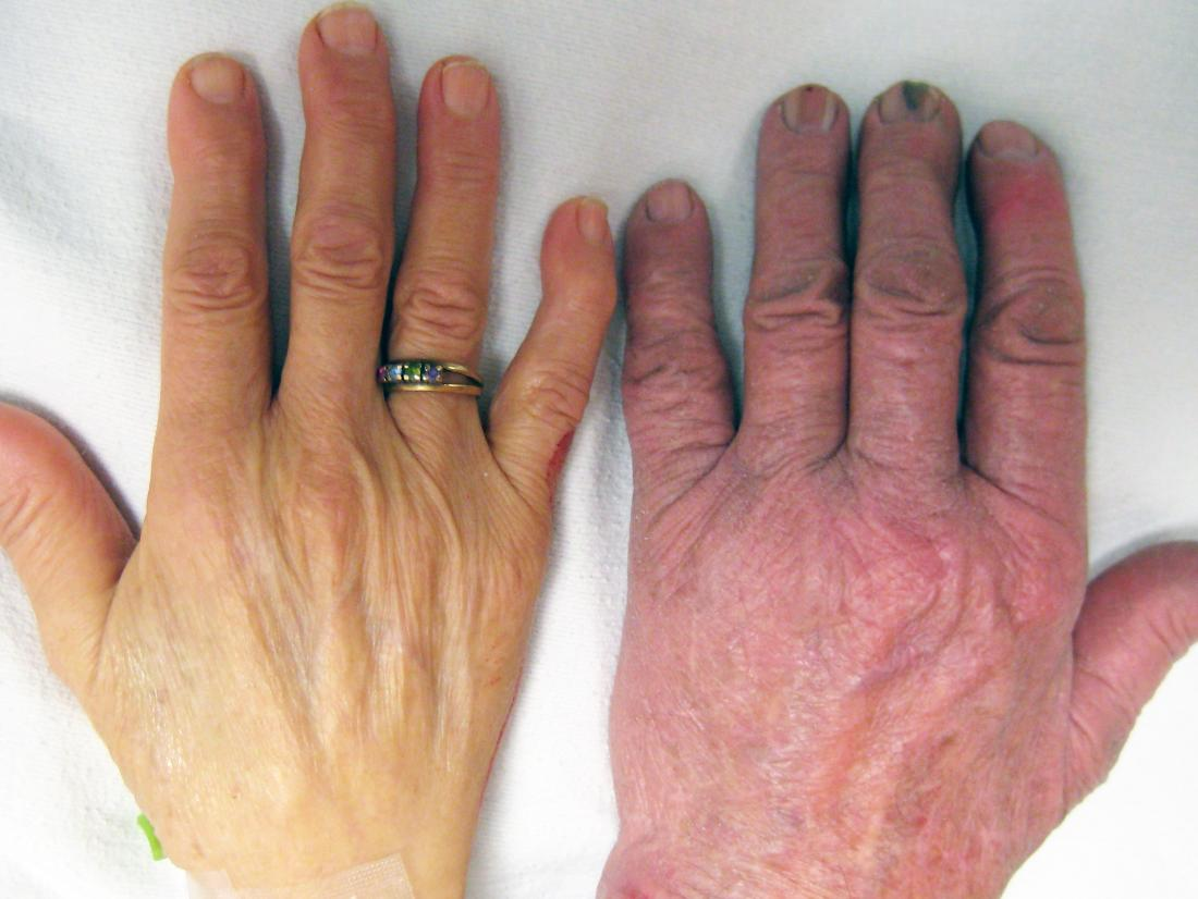 A hand showing skin paleness.