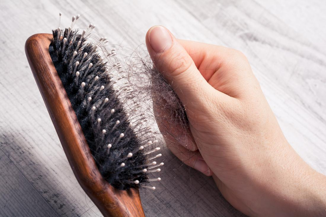 Hair brush with hair in it. It is rare for people to experience hair loss as a symptom of RA.