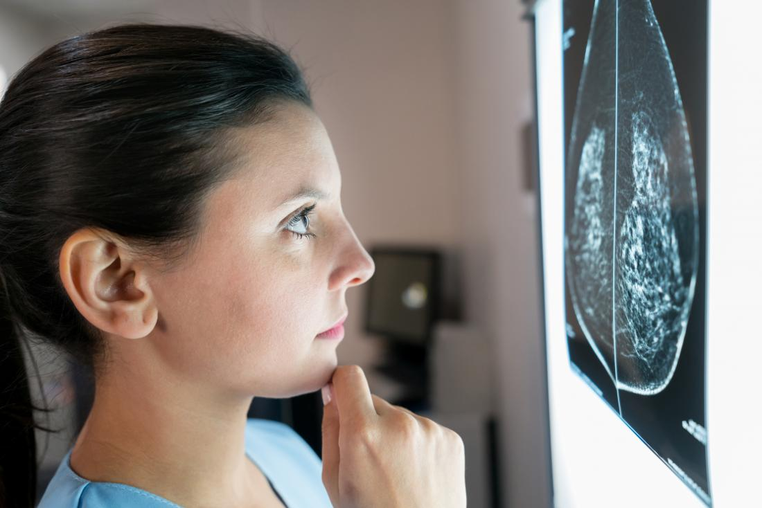 A doctor looking at mammogram to compare it to the tumor size chart.