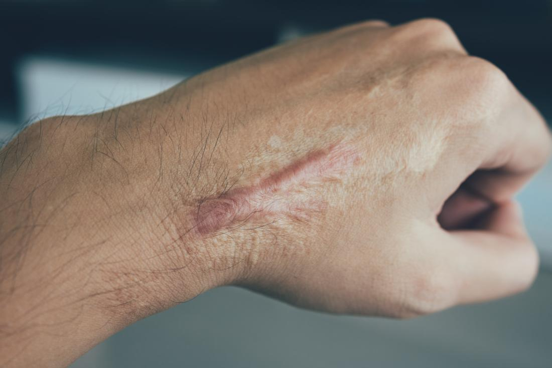 Keloid scar tissue on man's wrist and hand.