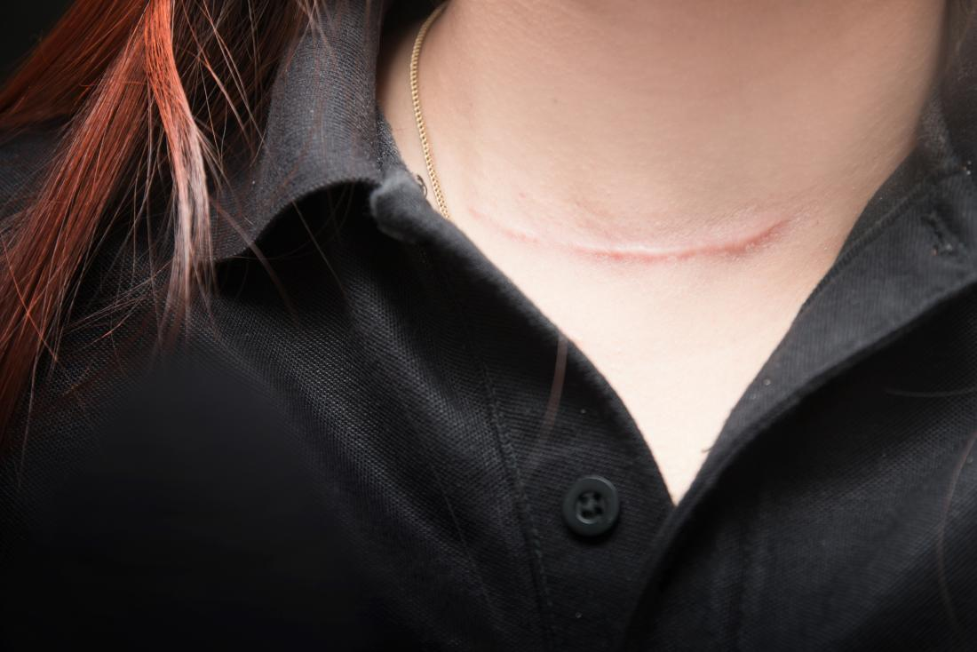 young woman with scar on neck