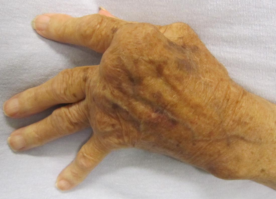 Slight ulnar deviation in hand affected by rheumatoid arthritis. Image credit: James Heilman, MD, 2010.