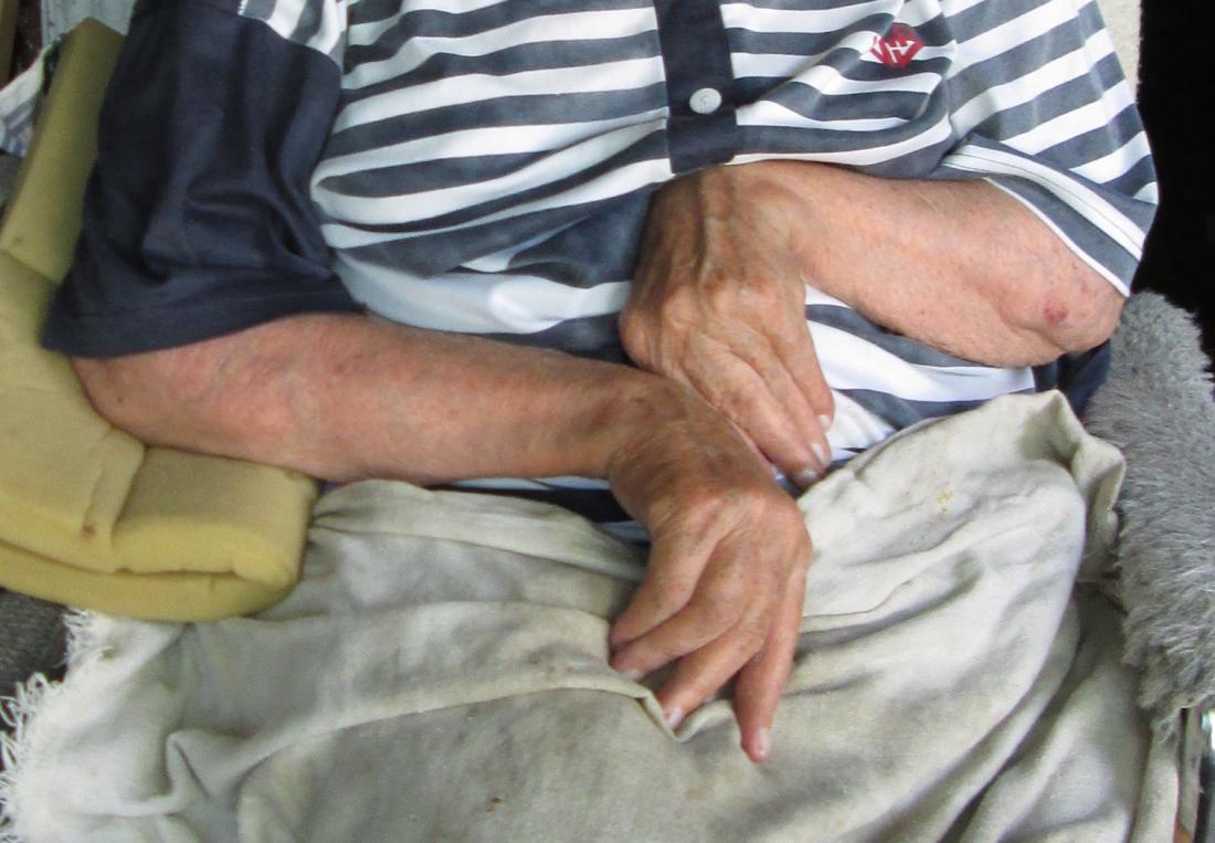 Ulnar deviation in person with rheumatoid arthritis. Image credit: Aljeannoir, 2015.