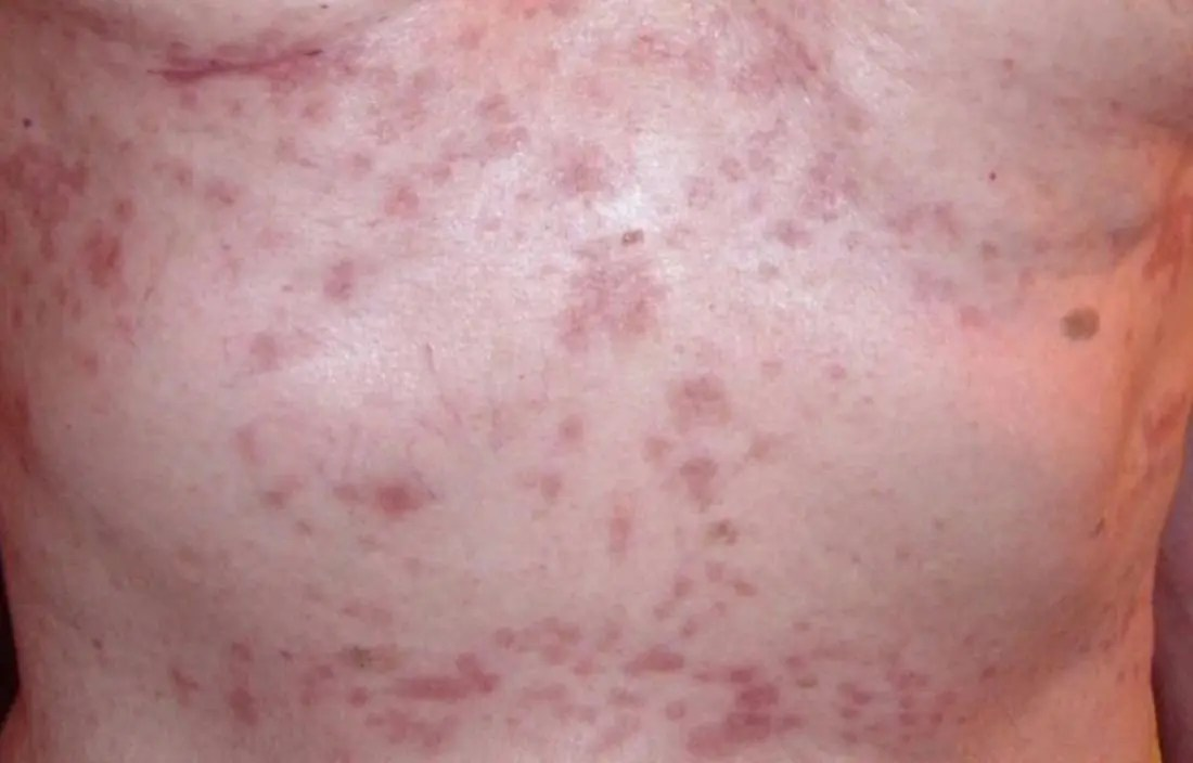 transient acantholytic dermatosis which is a papulovesicular dermatosis or papular eczema image credit tvbanfield 2009