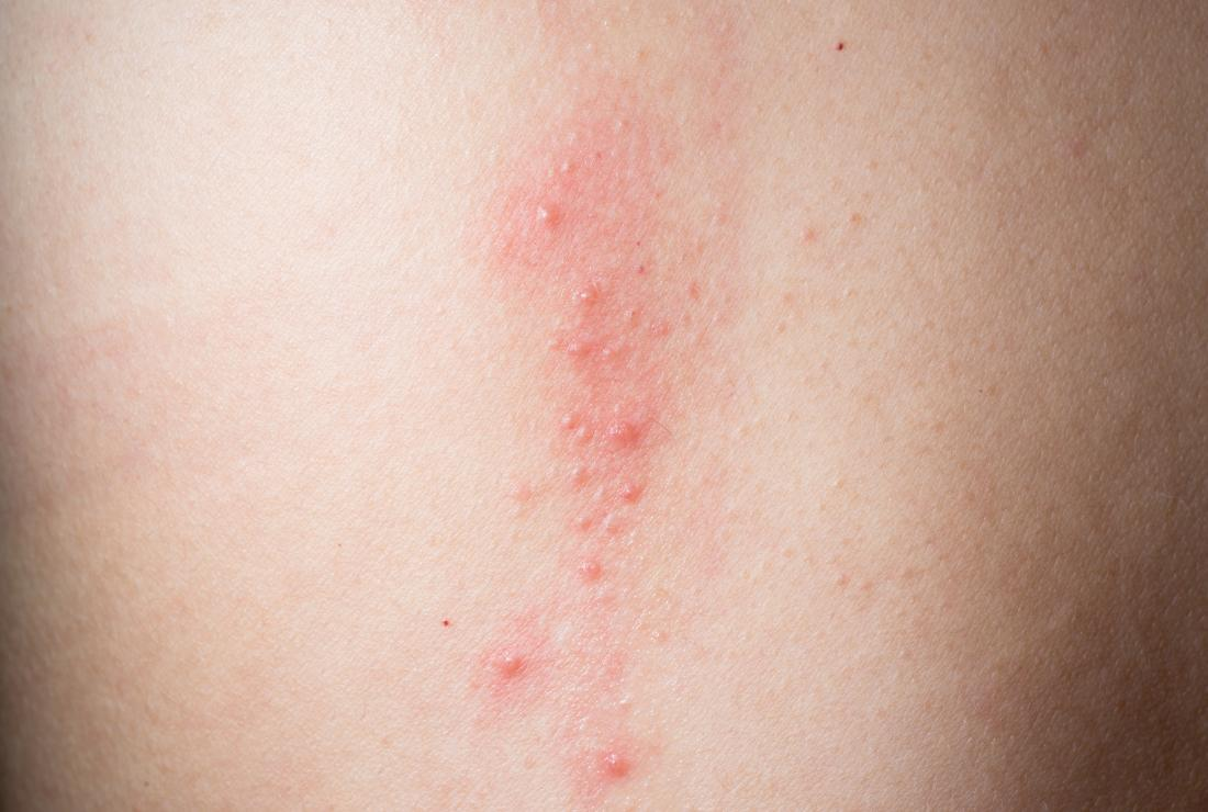 Contact dermatitis causing itchy skin on chest