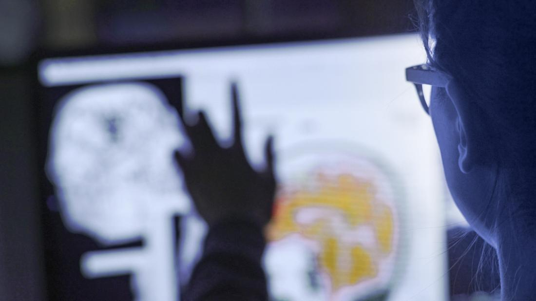 close up of a scientist's hand pointing at a brain scan on a screen