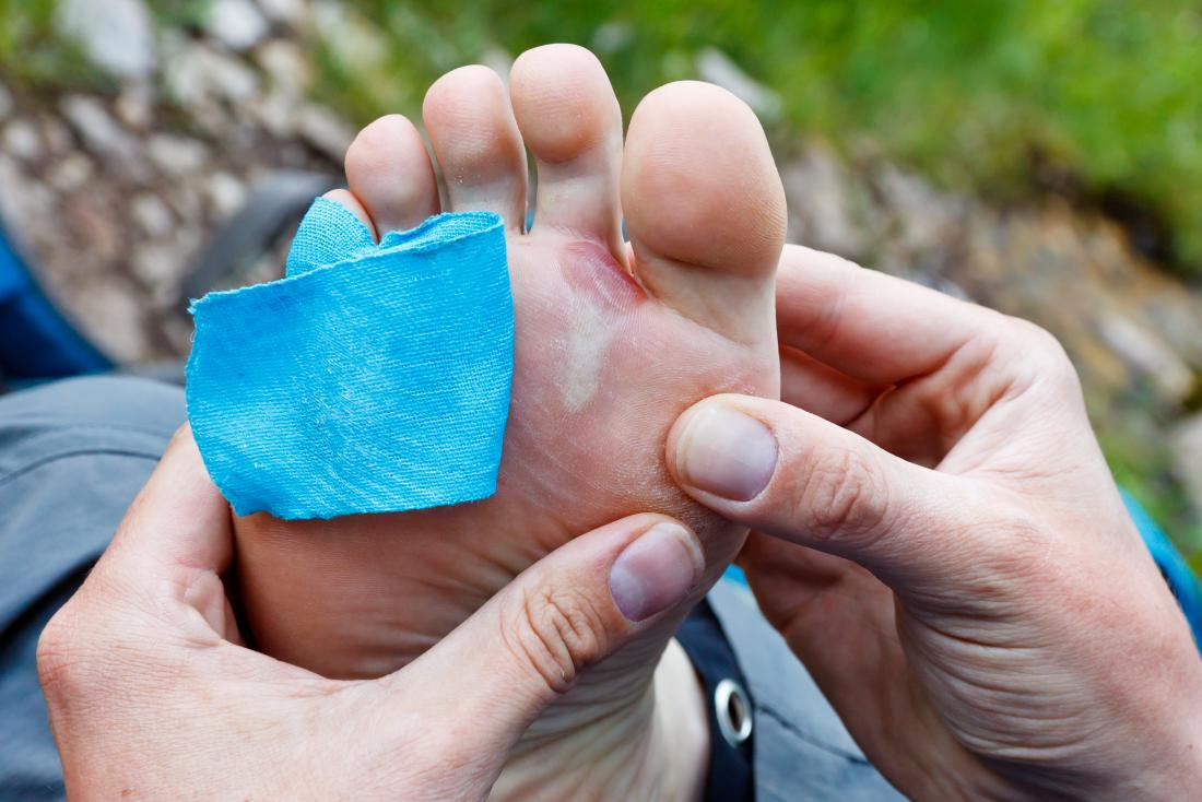 a man wondering should you pop a blister