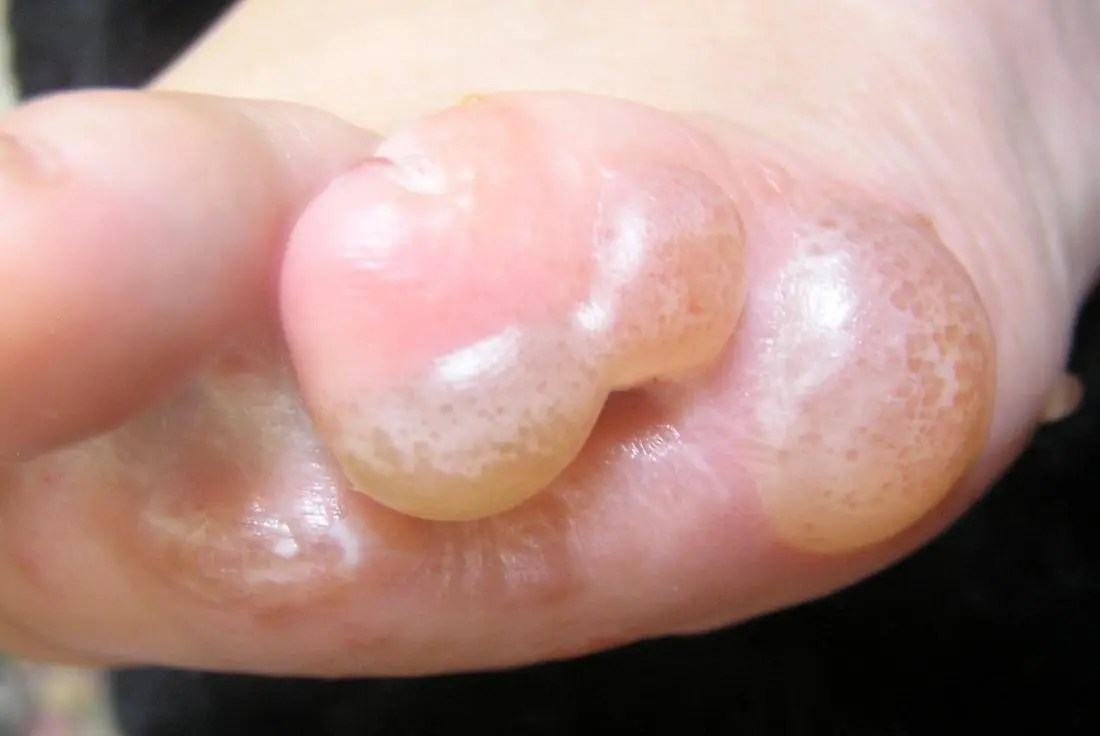 advanced stages of dyshidrotic eczema otherwise known as pompholyx. Image credit: Peter L Johnson, 2011.