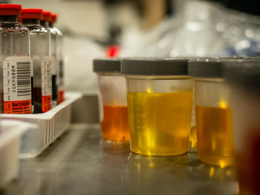 a selection of urine samples ready for Urinalysis