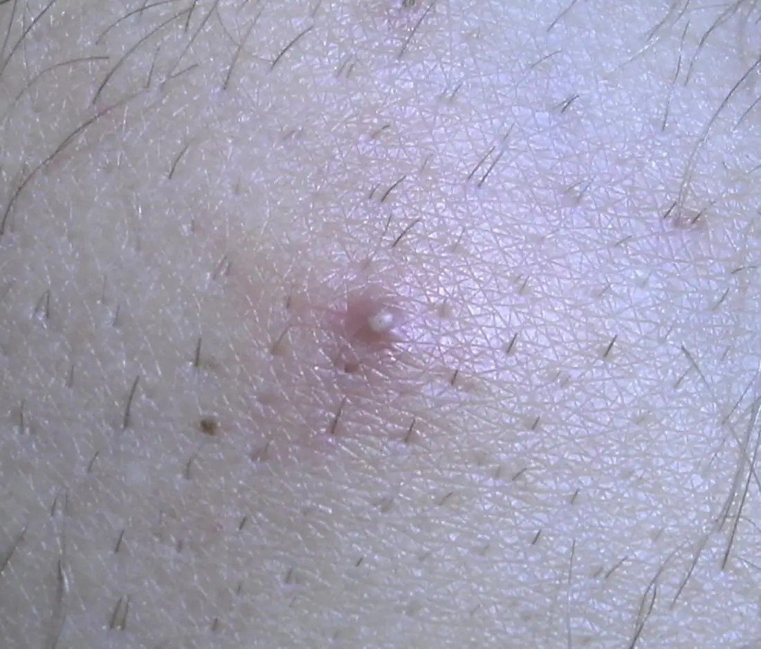 an ingrown hair on the skin that might look similar on the penile shaft