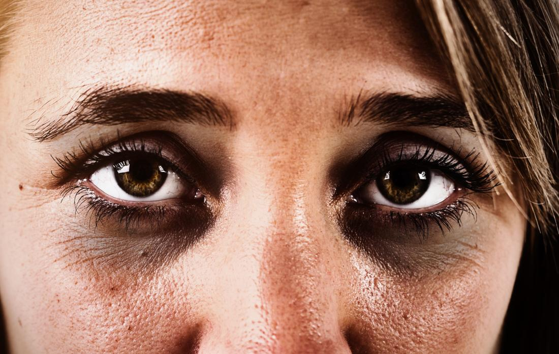 Dark circles under the eyes: Causes and treatments
