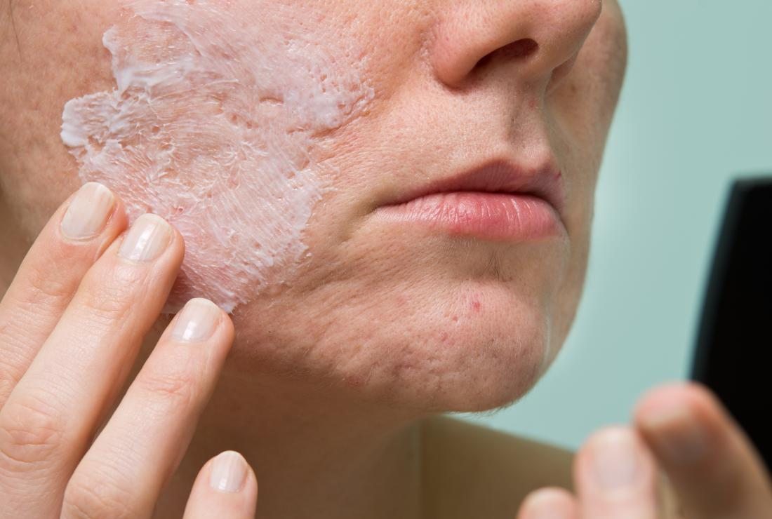 A woman treating acne and wondering the differences between Salicylic acid vs. benzoyl peroxide