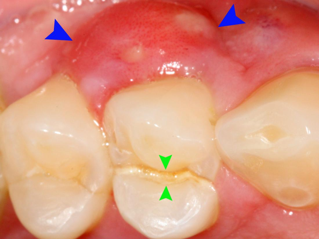A Crack of the tooth and root splitting it in two even pieces which has caused a lateral periodontal abscess. Image credit: Coronation Dental Specialty Group, 2014