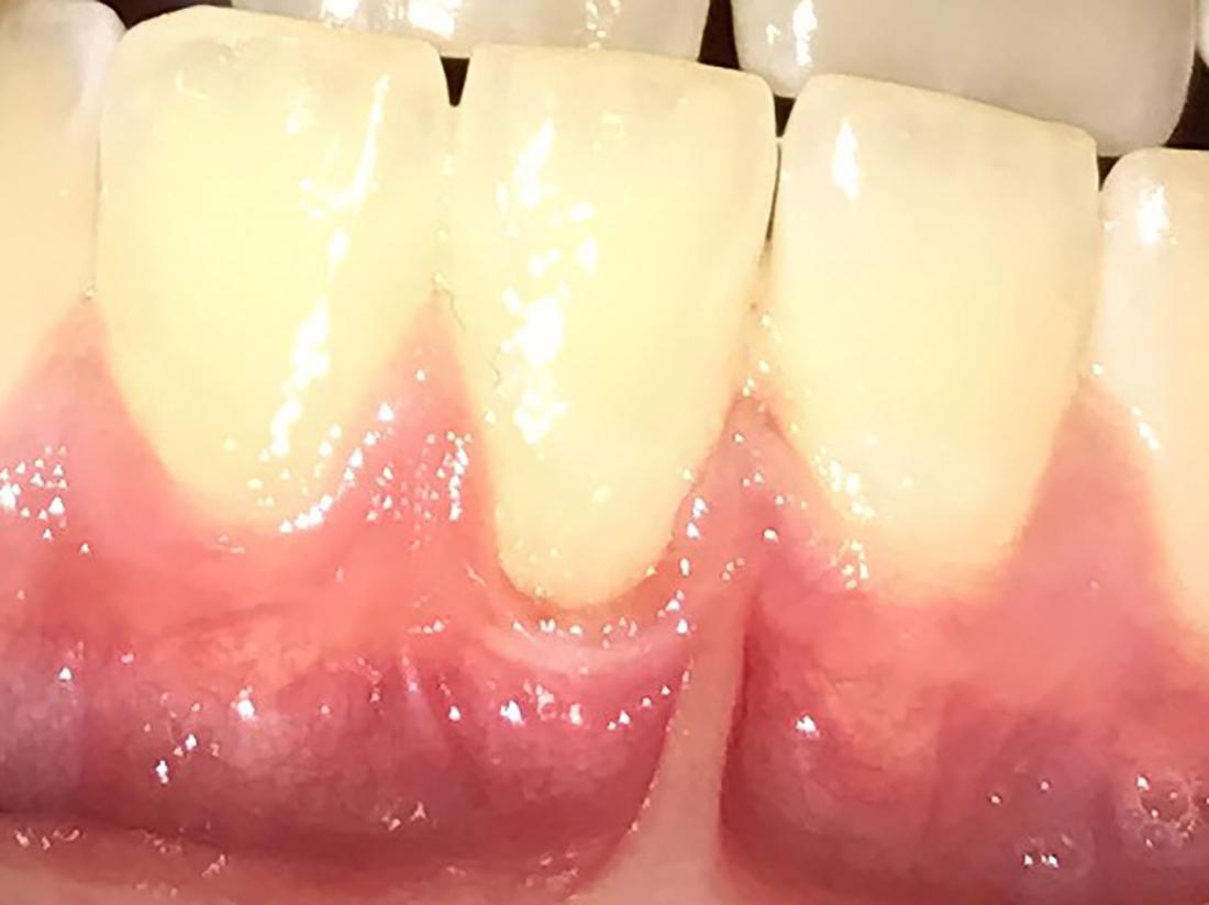 Do receding gums grow back? Treatments and prevention