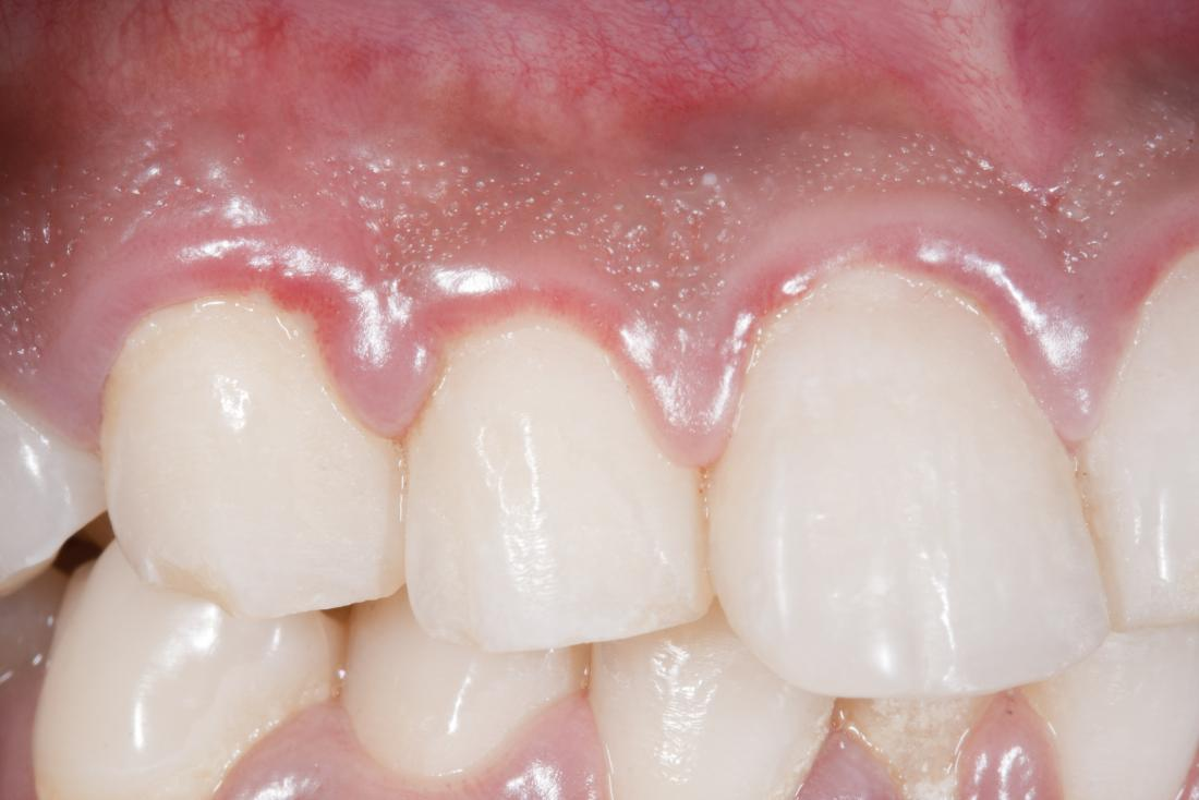 Swollen gums caused by Gingivitis