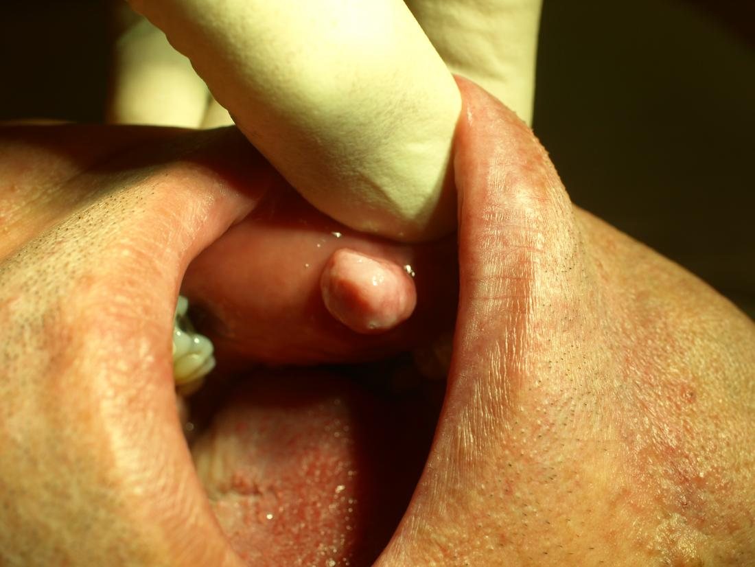 Fibroma of oral mucosa. Image credit: Klaus D. Peter, 2009