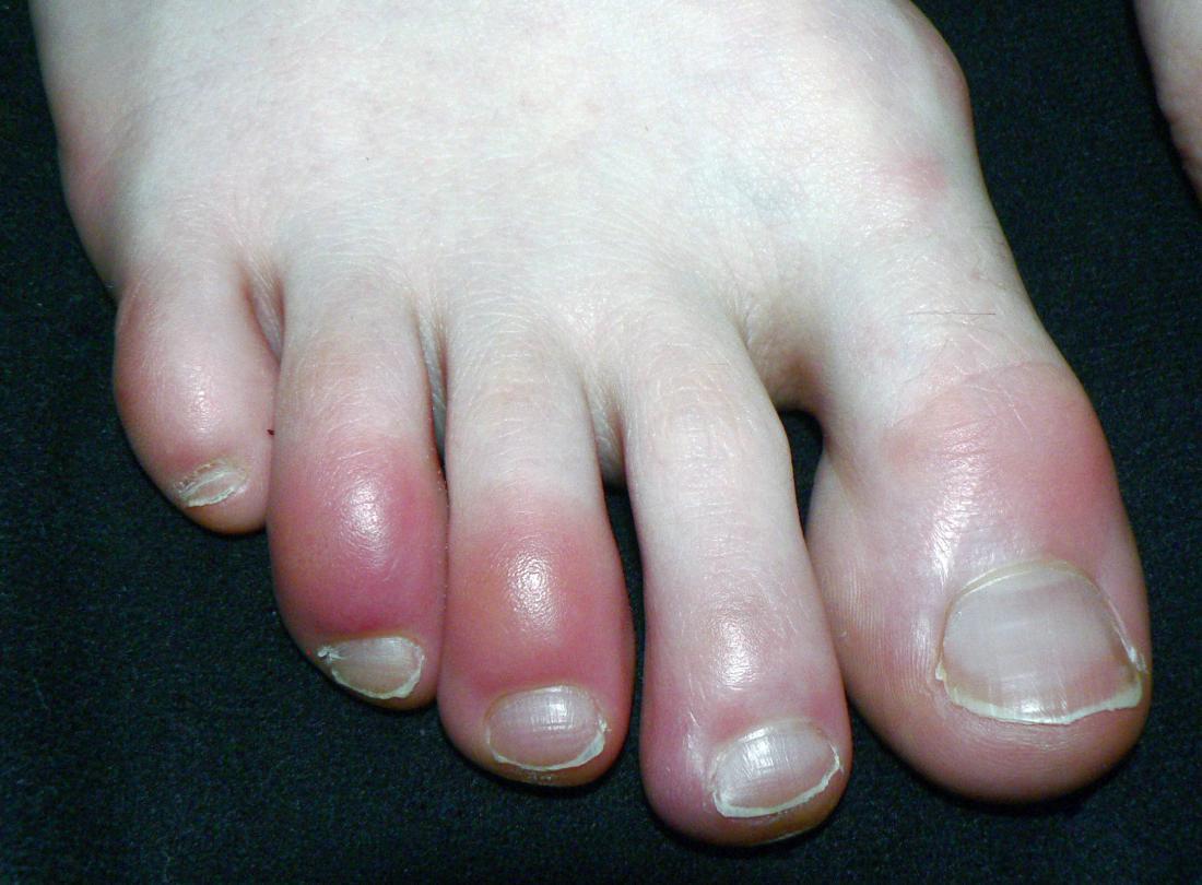 28++ Pinky toe bone sticking out inspirations