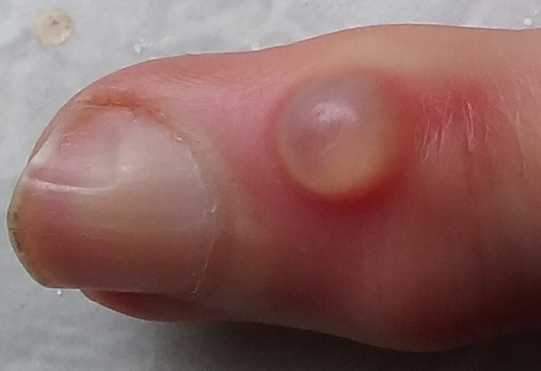 A Pimple on the finger caused by Digital mucous cyst. Image credit: Huge Bananas, 2015
