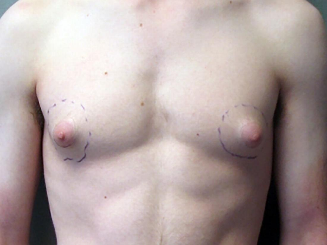 a man with puffy nipples. Image credit: JMZ1122, 2009