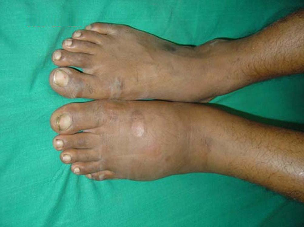 feet with Charcot arthropathy. Image credit: J. Terrence Jose Jerome, 2008