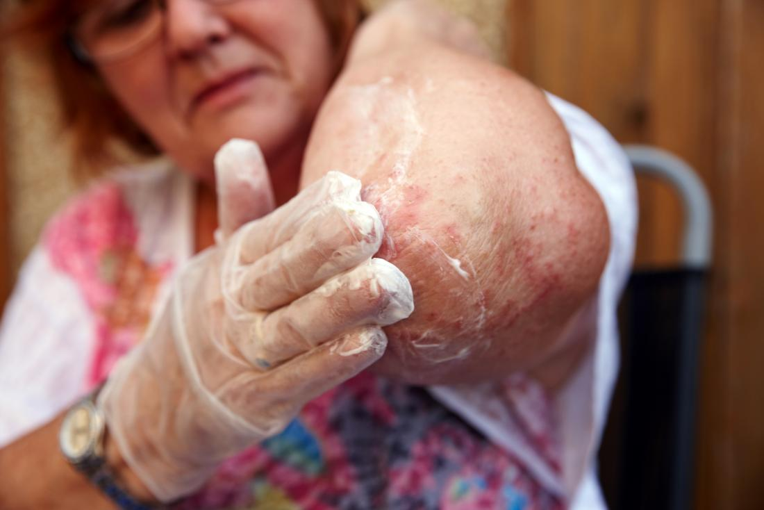 a woman with bumps on the elbow from Eczema