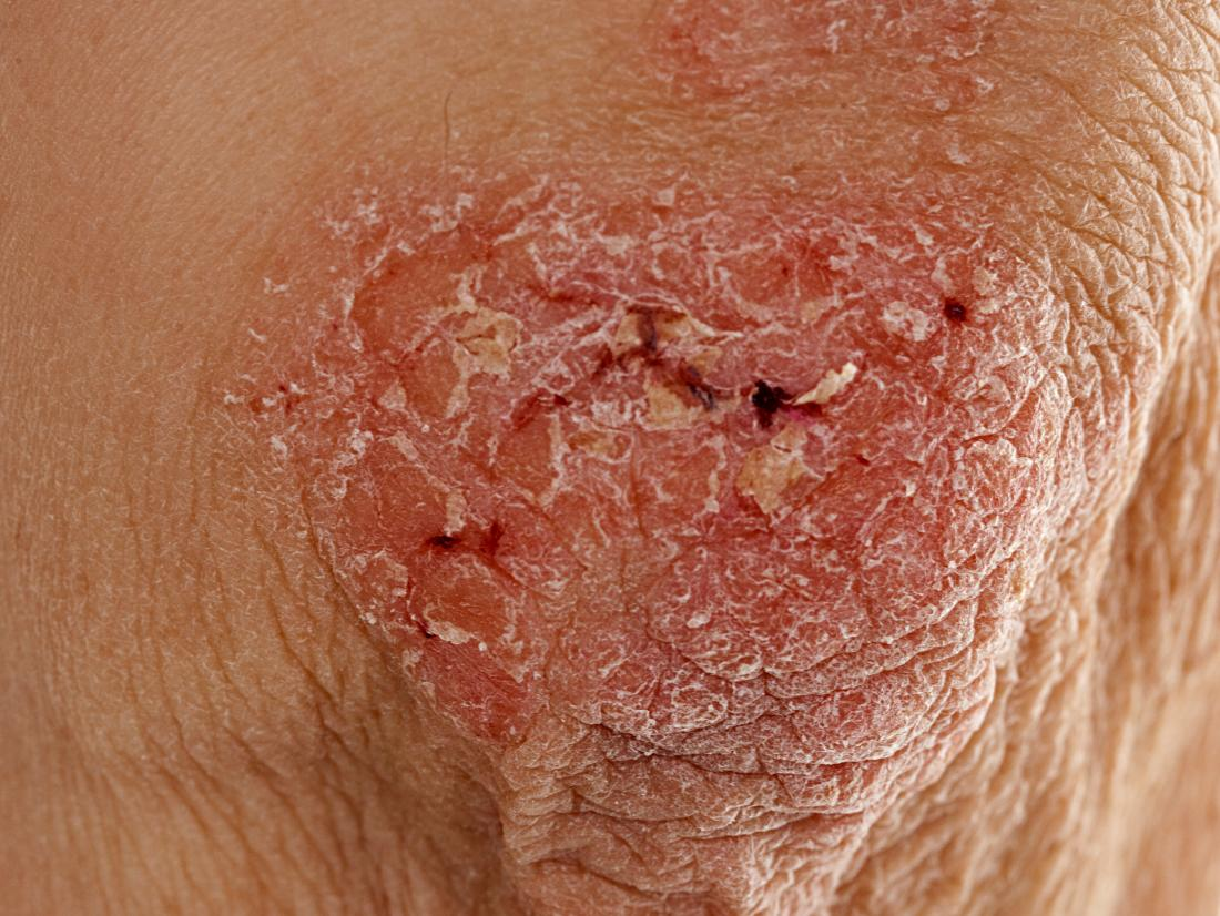Psoriasis on a seniors elbow