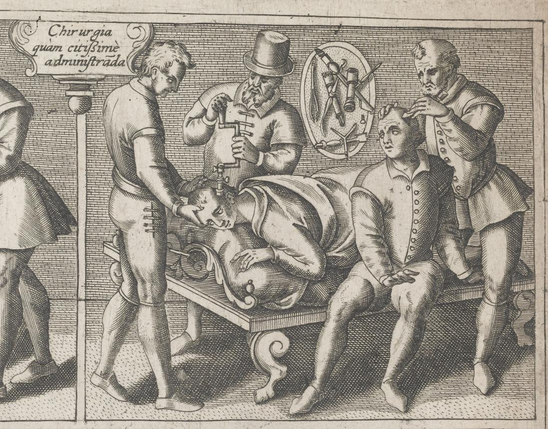 Wellcome collection trepanning L0041513