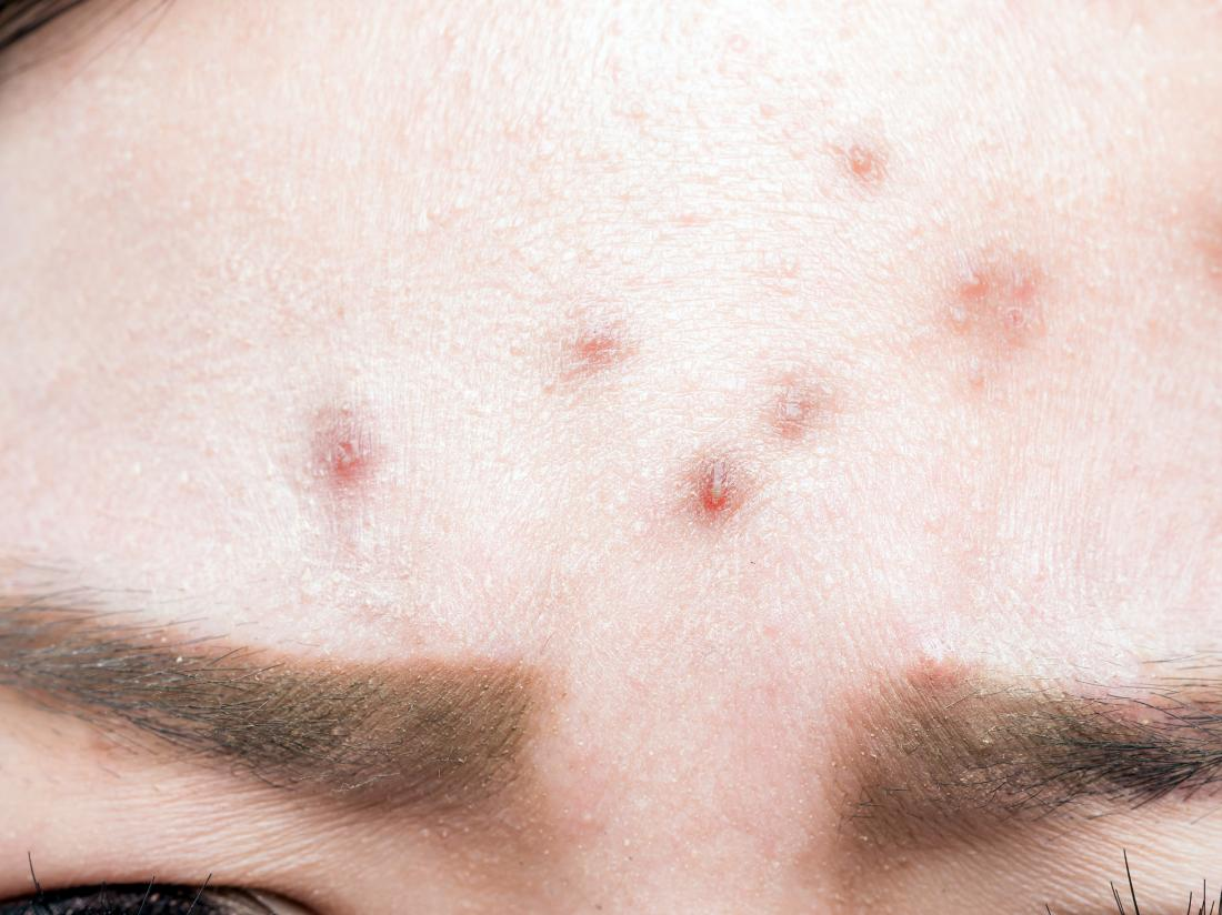 Bump On Forehead 7 Causes And Treatment