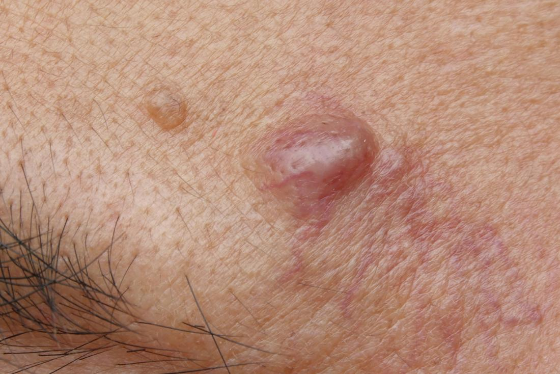 What Do Red Spots On Skin Mean? 13 Skin Spots & Bumps Pictures