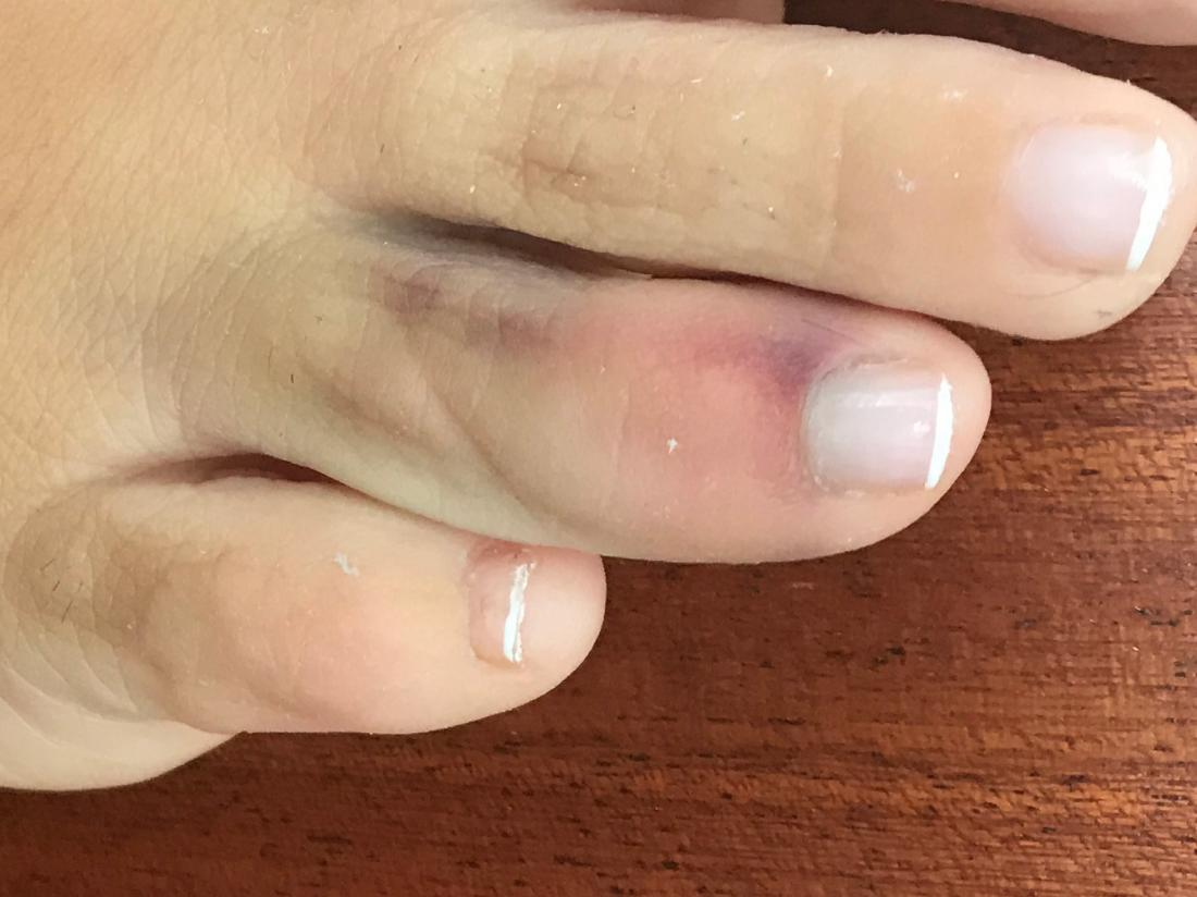 a Sprained toe