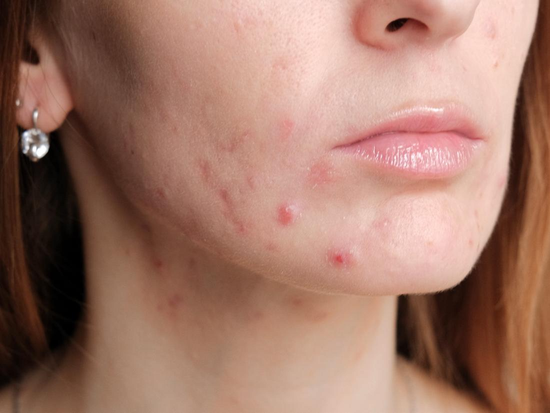 a woman with Pregnancy acne