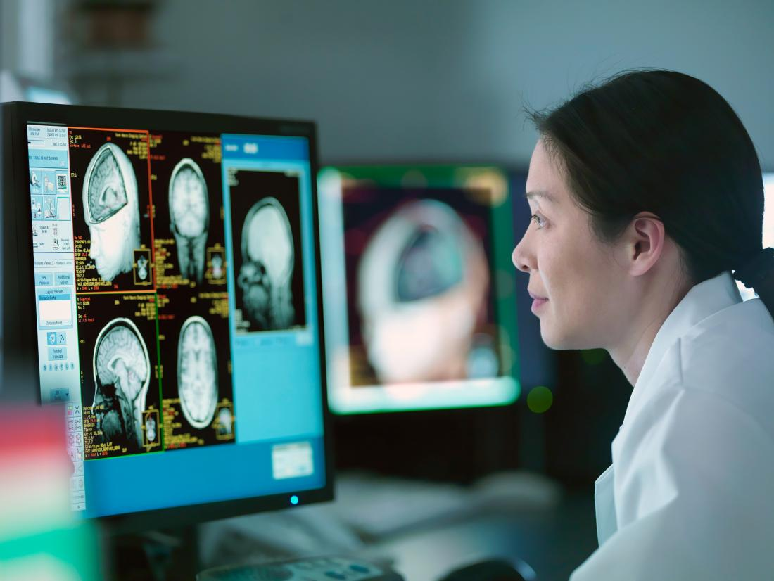 a neurologist looking at a brain scan