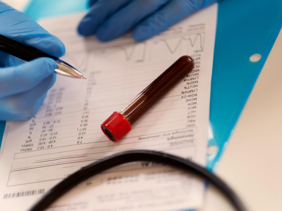 how long does it take for std blood test results