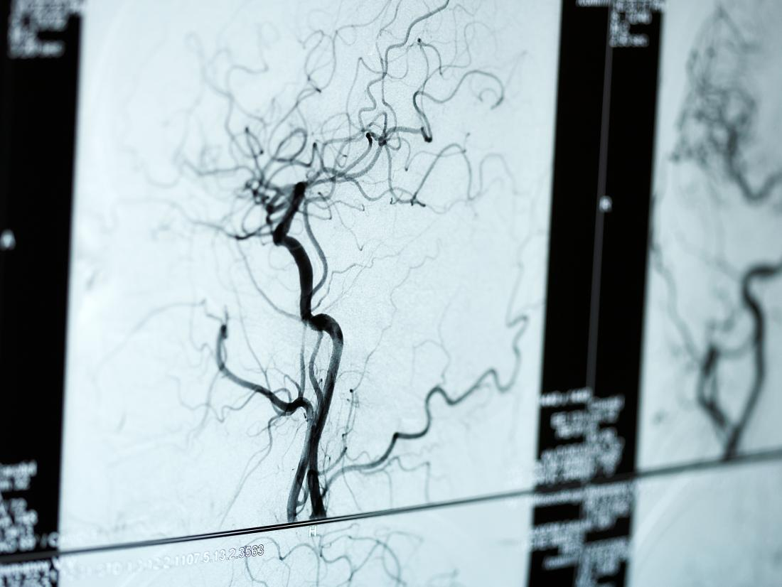 angiograms of blood vessels