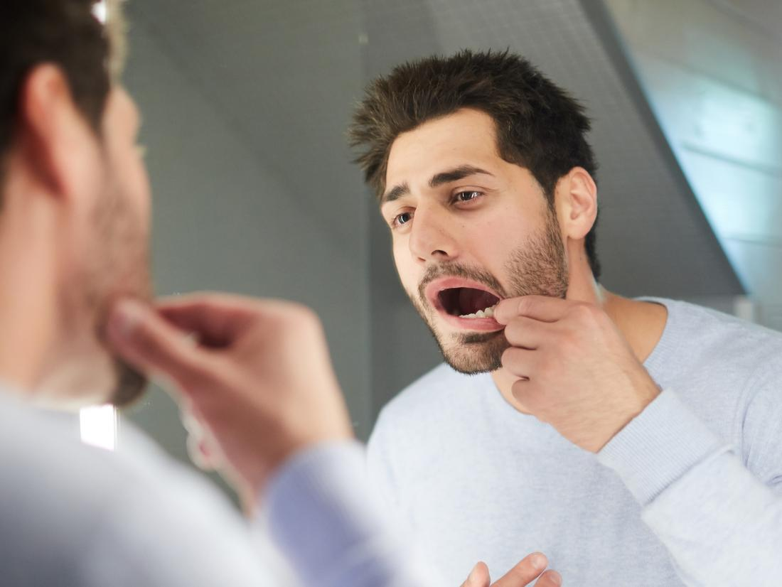 a man trying to feel the soft palate in his mouth with his finger.